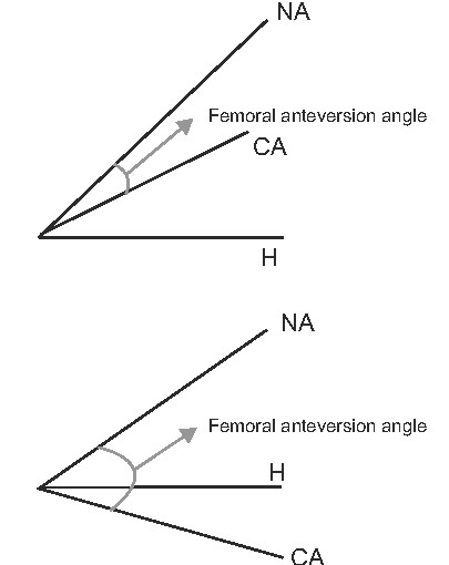 Clinical importance and sex differences of the femoral anteversion angle